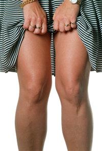 åderbråck ben behandling