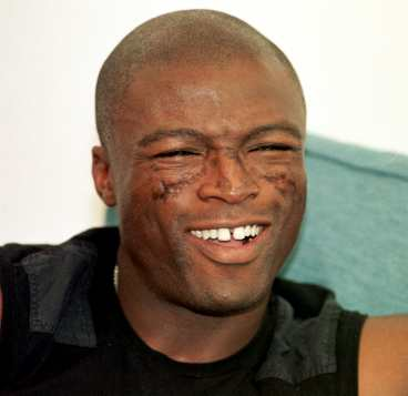 Why is Seal's face scarred